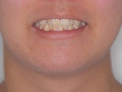 みや わき 矯正 歯科